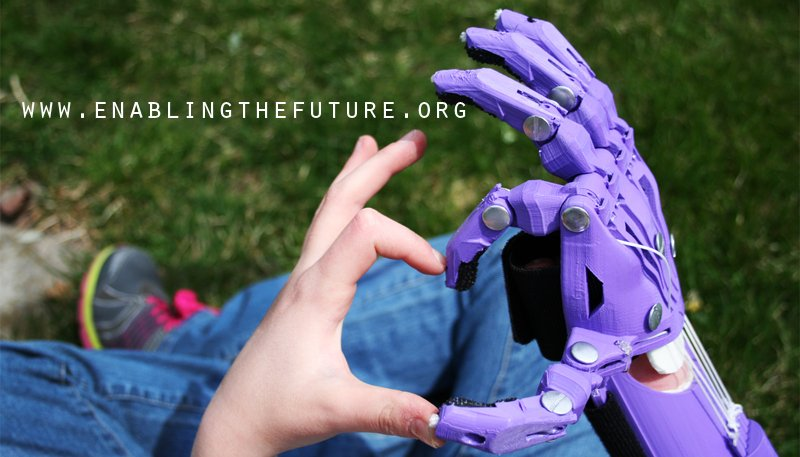 E-Nable Revolutionizes Prosthetic Industry with 3D Printing